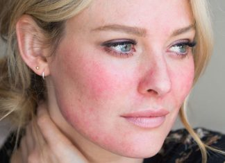 Rosacea peels London